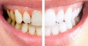 بلیچینگ دندان چیست