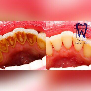 مضرات جرم گیری دندان