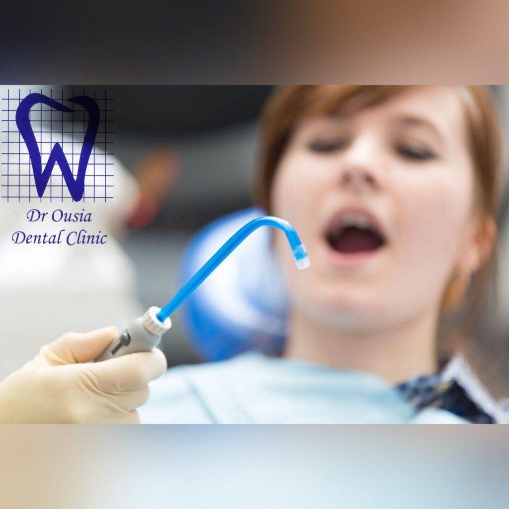 رسیدگی به دندانها