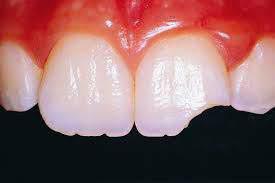 روکش دندان عصب کشی شده