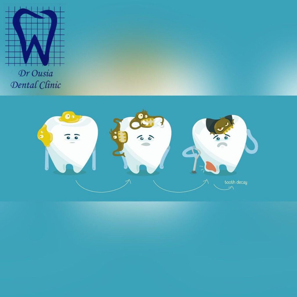 پوسیدگى هاى دندان