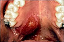 آدنوکارسینوم غدد بزاقی (Adenocarcinomas of the Salivary Gland)