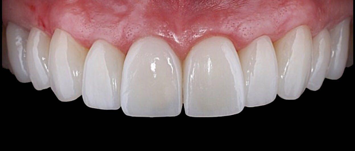 ویدیو لمینیت دندان