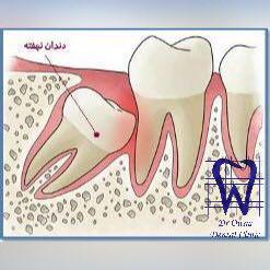 دندان نهفتە