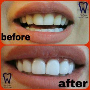لمینیت دندان مطب دندانپزشکی دکتر اوصیاء