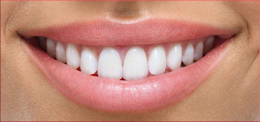 نشانه های ( لندمارک ) مهم در ارزیابی لبخند