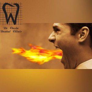 درمان سوختگی دهان