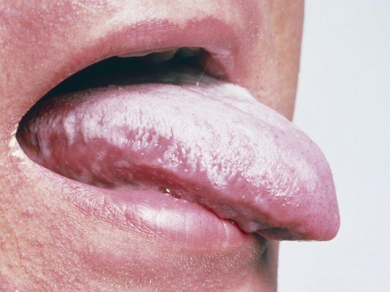 موکوزیت دهانی