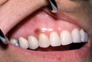 خال دهان