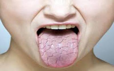 سرطان زبان | بیماری زبان | دانه های انتهای زبان | زبان مودار | علت بوی بد دهان
