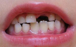 مراقبت از دندانهاى دائمى