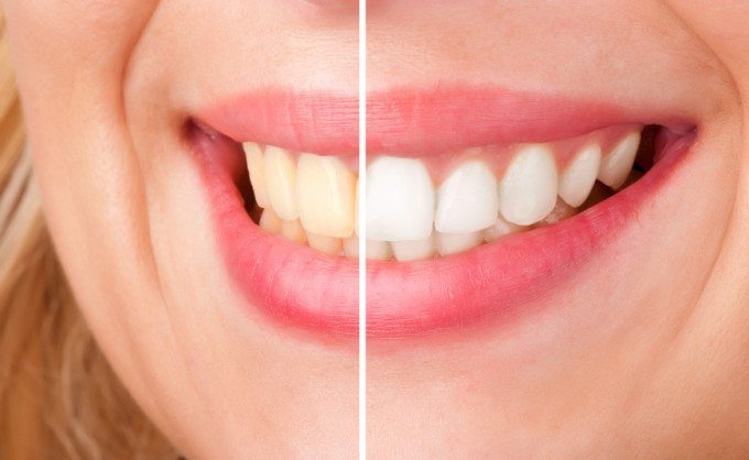 سفید کردن دندان و بلیچینگ با لیزر