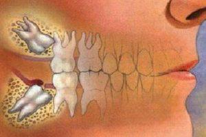 کشیدن دندان با لیزر