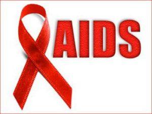 آفت دهان و ایدز