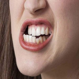 دندان قروچه چیست