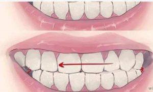 متوقف کردن دندان قروچه
