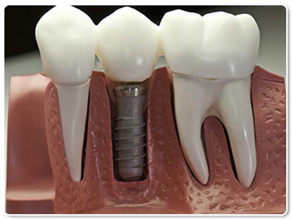 ۵ سوال متداول در مورد ایمپلنت دندان