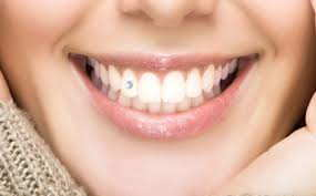 انواع نگین دندان