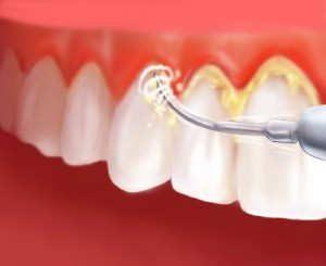 آسیب جرم گیری به دندان