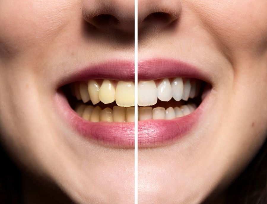 تفکرات اشتباه درباره ی جرم گیری دندان