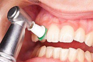 نکات جرم گیری دندان