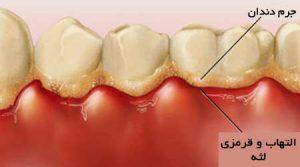 مراقبت های بعد از جرم گیری دندان