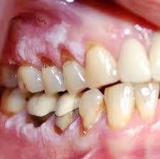 علایم سرطان دهان