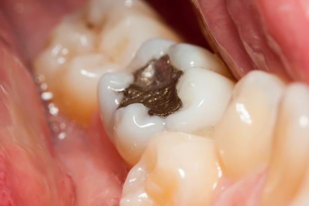 معایب پر کردن دندان