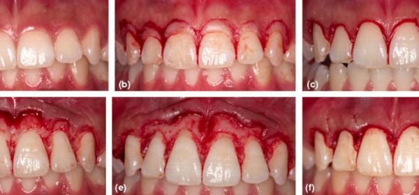 تاج زدن دندان چطور انجام میشود؟