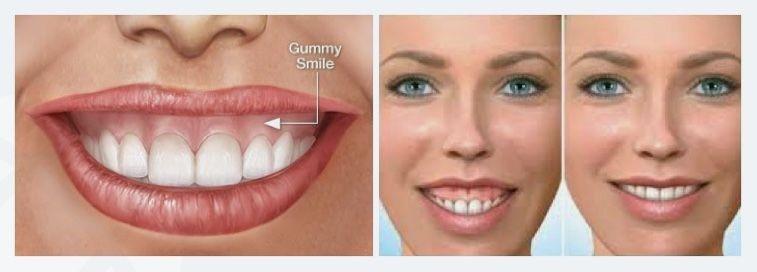 لبخند لثه ای به بیان متخصص دهان، فک و صورت چیست؟