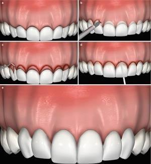مزایای تاج زدن دندان چیست؟